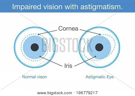 The different between normal vision and Impaired vision with astigmatism in front view. Illustration about common eye problem.