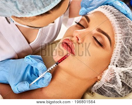 Filler injection for female forehead face. Silicone lips in the girl. Doctor in medical gloves with syringe injects lips augmentation. Plastic surgery is progressing.