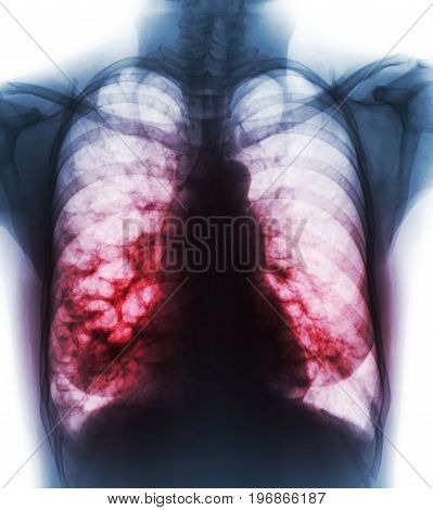 Bronchiectasis . X-ray chest show multiple lung bleb and cyst due to chronic infection . Front view .