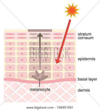 skin mechanism of facial blotches. skin care concept