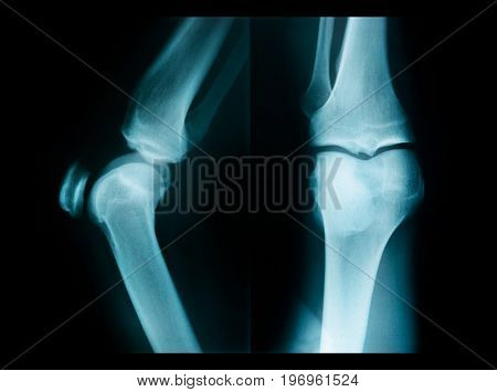 X-ray picture showing knee joints (knee bones joint)