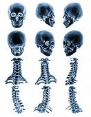 CT scan ( Computed tomography ) with 3D graphic show normal human skull and cervical spine . Multiple view . poster