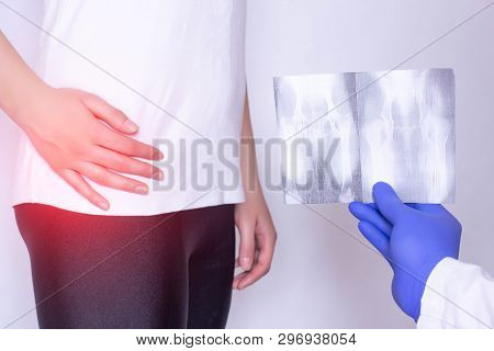 Doctor Holds X-ray Picture On The Background Of A Girl With A Sore Hip Joint And Intervertebral Hern