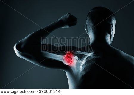 Human Shoulder Joint In X-ray On Gray Background