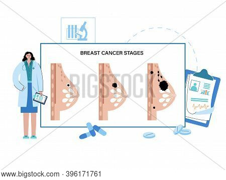 Stages Of Breast Cancer From Non Invasive To Spreads To Other Organs And Female Disease Concept. Pai
