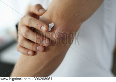 Man Applying Protective Cream To Damaged Skin Of Elbow Close-up. Psoriasis Treatment Concept