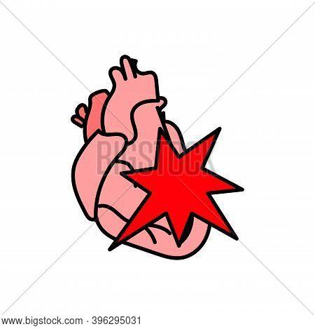 Human Heart Icon, Stroke, Myocardial Infarction, Pain, Bleeding, Vector Flat Illustration.