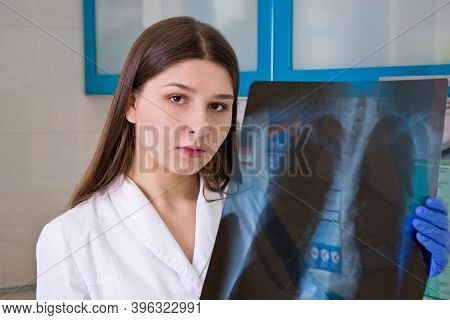 Female Doctor In The Hospital Looks At The X-ray Of The Lungs.