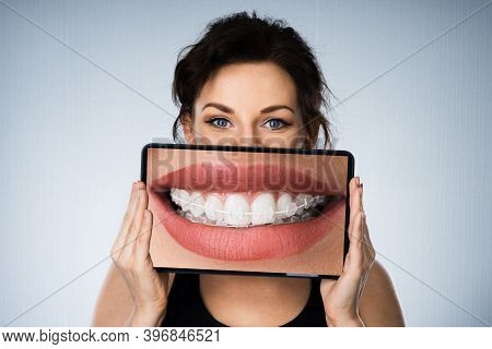 Fund Woman Portrait With Dental Braces And Tablet