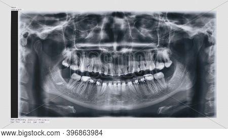 Panoramic Dental X-ray Image Of Teeth With Braces. Orthopantomogram Or Optg Film