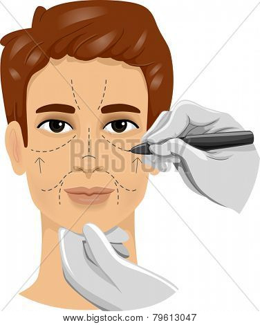 Illustration of a Man Having His Face Marked With Incision Lines Before  a Cosmetic Procedure