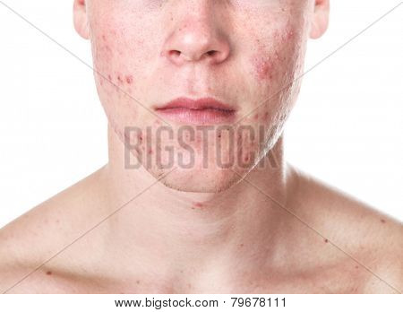 Teenager with Acne poster