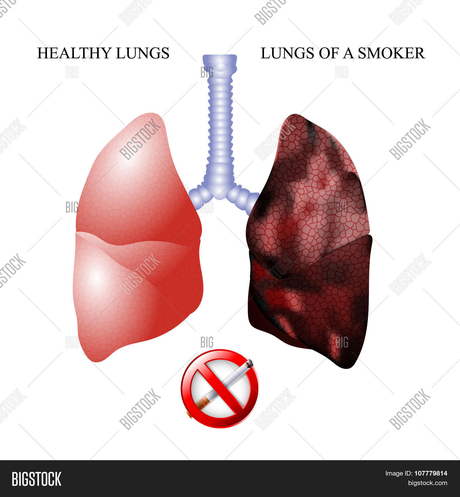 The lungs of a healthy person and the lungs of the smoker: a comparison. Diseases of the lungs from smoking 43