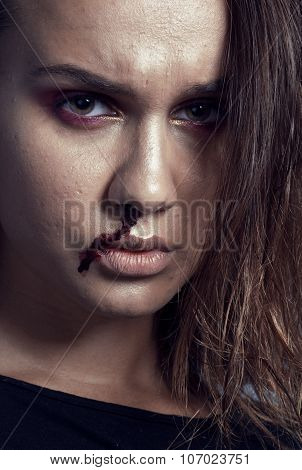problem depressioned teenager with bleeding nose, real junky close up mainstream