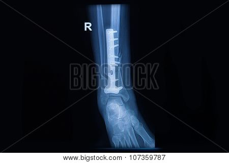 Film X-ray Ankle Show Fracture Distal Tibia