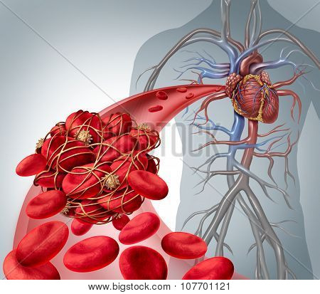 Blood Clot Risk