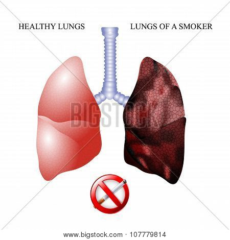 the lungs of a healthy person and smoker alveoli