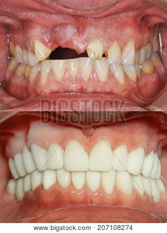 Close Up Of A Patient's Mouth At A Dental Clinic. Before And After