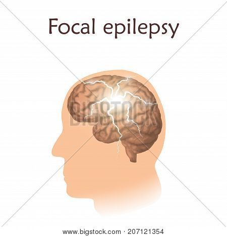 Focal epilepsy. Vector medical illustration. White background, silhouette of man, anatomy image of brain, electrical discharge.