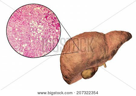 Fatty liver, liver steatosis, 3D illustration and photomicrograph showing large vacuoles of triglyceride fat accumulated inside liver cells, it occurs in alcohol overuse, under action of toxins