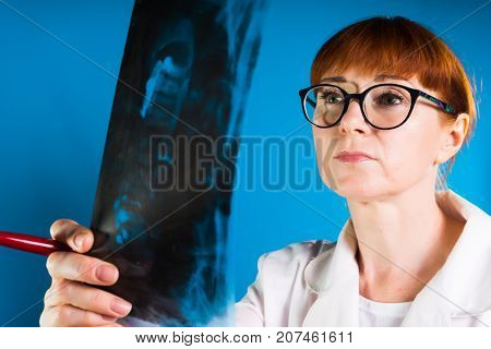woman doctor in glasses carefully examines x-ray sheet