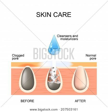 Skin care. Clogged and normal pores. Before and after using scrubs cleansers and moisturizers poster