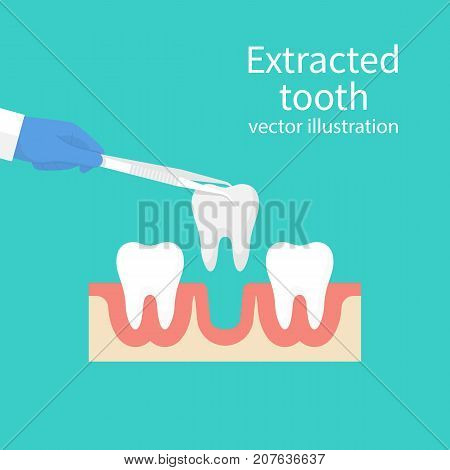 Extracted tooth in tongs. Dentist pulls out sick tooth. Stamatologic concept. Remove root. Vector illustration flat design. Isolated on background. Tweezers in hands.
