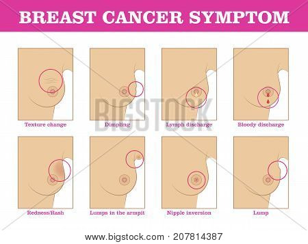 Breast cancer symptoms infographic. Methods for detecting breast cancer using self-testing for designers and illustrators. Timely care of woman health in the form of a vector illustration