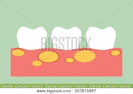 tooth cartoon vector flat style for design - unhealthy teeth because gingivitis with abscess in gum and dental plaque or tartar poster
