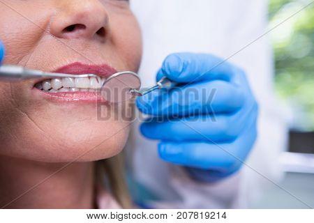 Close up of dentist examining woman at medical clinic