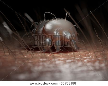 3d rendered medically accurate illustration of a scabies mite on human skin