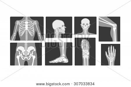 Creative Radiology Skeleton Bones Vector realistic X-ray Logo Design Illustration poster