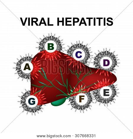 Types Of Viral Hepatitis. Hepatitis A, B, C, D, E, F, G. World Hepatitis Day. Infographics. Vector I
