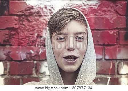 Portrait Of A Happy Young Man With Tooth Brace And Hoodie