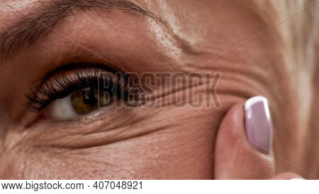 Close Up View Of Smiling Middle Aged Caucasian Woman Eye With Age Changes On Skin In Form Of Wrinkle