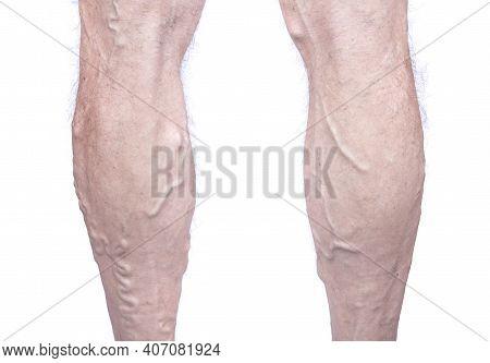 Closeup Of Elderly Man Leg With Varicose Veins Isolated On White Background. Varicosity Spider Veins