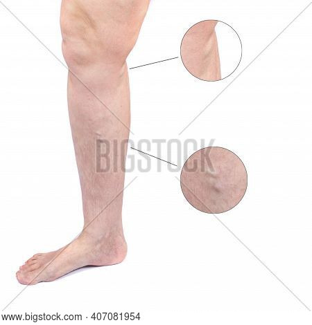 Woman Leg With Varicose Veins Isolated On White Background. Varicosity Spider Veins. Medicine And Co