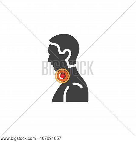 Sore Throat Ache Vector Icon. Filled Flat Sign For Mobile Concept And Web Design. Sore Throat Pain G