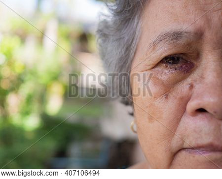 Asian Senior Woman Treatment Nasolacrimal Duct Obstruction (lacrimal Canaliculus). The Doctor Treate