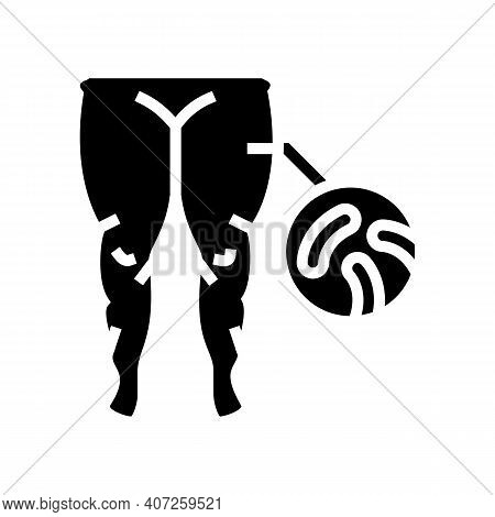 Fatty Edema Glyph Icon Vector. Fatty Edema Sign. Isolated Contour Symbol Black Illustration