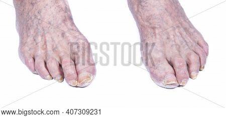 Sick Nails On Foot. Toenail Fungus Isolated On White. Sore Toe-nail, Nail Fungus