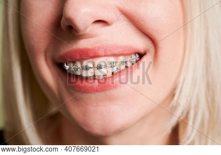 Close Up Of Smiling Patient Showing White Straight Teeth With Orthodontic Brackets. Woman Demonstrat