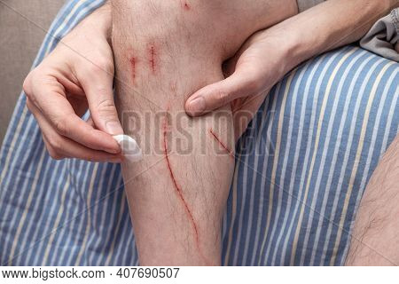 Man Treats His Tsaripins With An Antiseptic Cotton Swab. Fresh Wounds From Cat Claws. The Human Shin