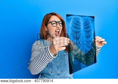 Beautiful redhead woman holding chest radiography angry and mad screaming frustrated and furious, shouting with anger. rage and aggressive concept.