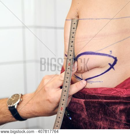 Close Up Of Plastic Surgeon Hand Measuring Woman Abdomen With Ruler Before Cosmetic Surgery. Male Do