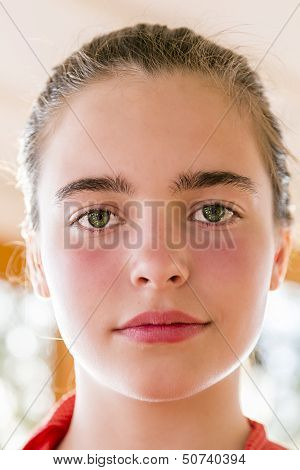 Closeup Portrait Of A Teenage Girl With Reddened Cheeks