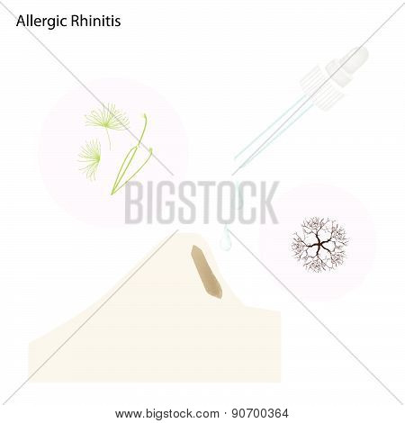 The Allergic Rhinitis Patient With Nose Drops