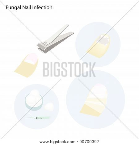 Medical Concept Illustration of Fungal Nail Infection and Part of The Treatment Process.. poster