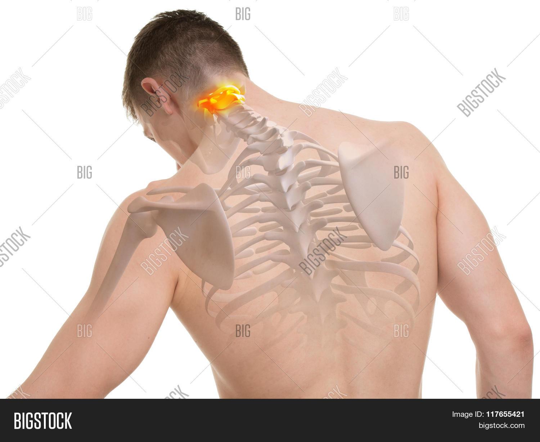 Atlas C1, C2 Spine Anatomy Isolated Image & Photo | Bigstock