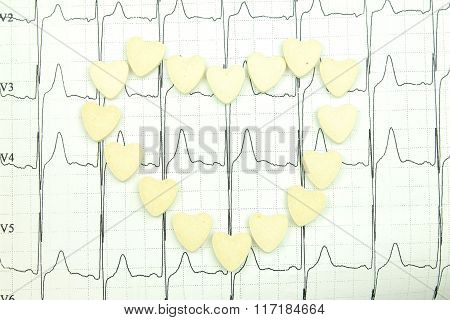 The results of electrocardiography